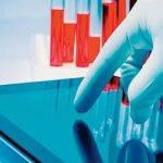 Eingabesysteme HMI